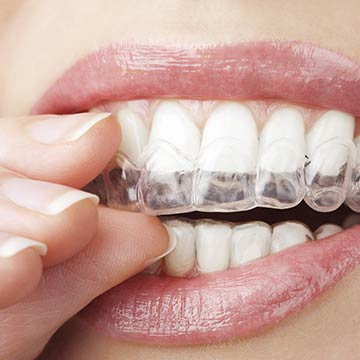 Invisalign solutions with Dr. Bard J. Levey