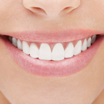 Teeth Whitening solutions with Dr. Bard J. Levey